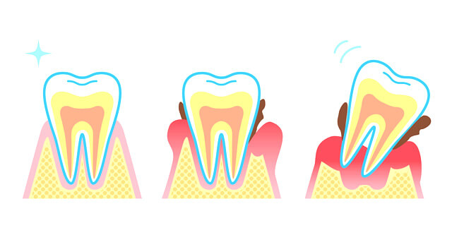 歯周病の進行j