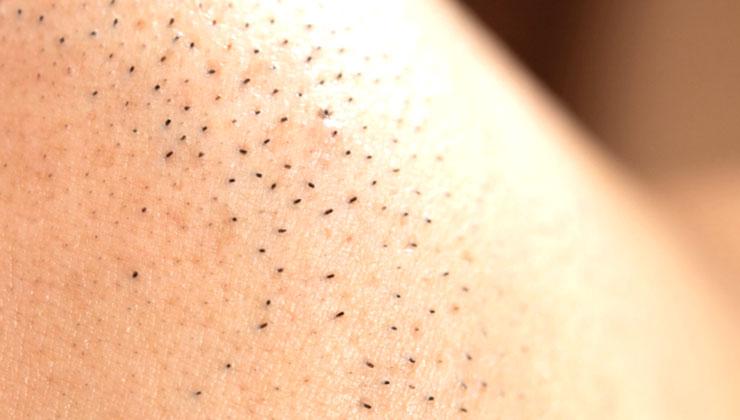 毛穴が目立つ肌